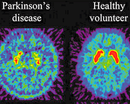 1. How is Parkinson's disease diagnosed? What is a TRODAT / F-DOPA scan?