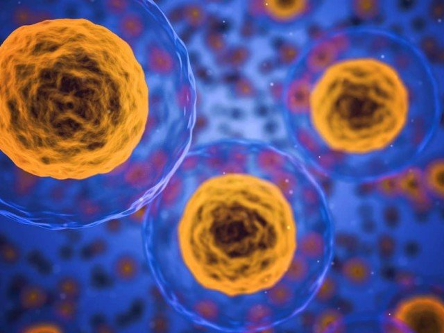 4. Slowing Parkinson's Progression – Stem Cell Therapy